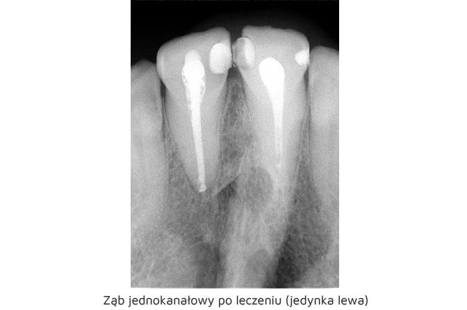 https://stomatolog-krzeszowice.pl/wp-content/uploads/2021/03/rtg11.jpg