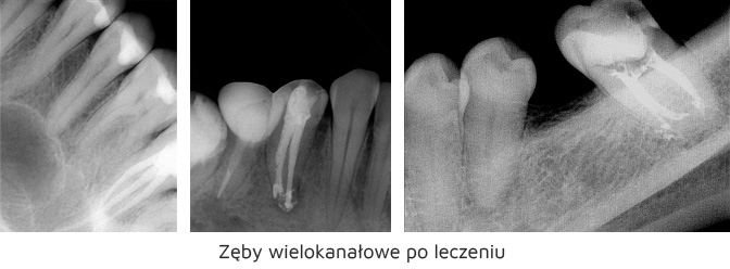 https://stomatolog-krzeszowice.pl/wp-content/uploads/2021/03/wielokanalowe-zeby.jpg
